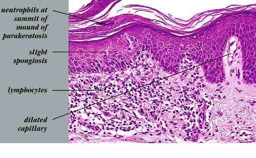 Gallery For > Psoriasis Histology Guttate Psoriasis