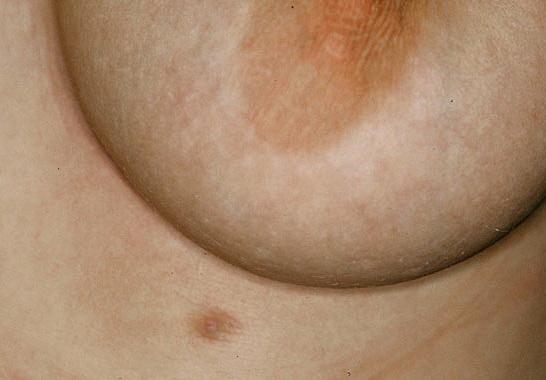 Accessory Breast Tissue In Pregnancy